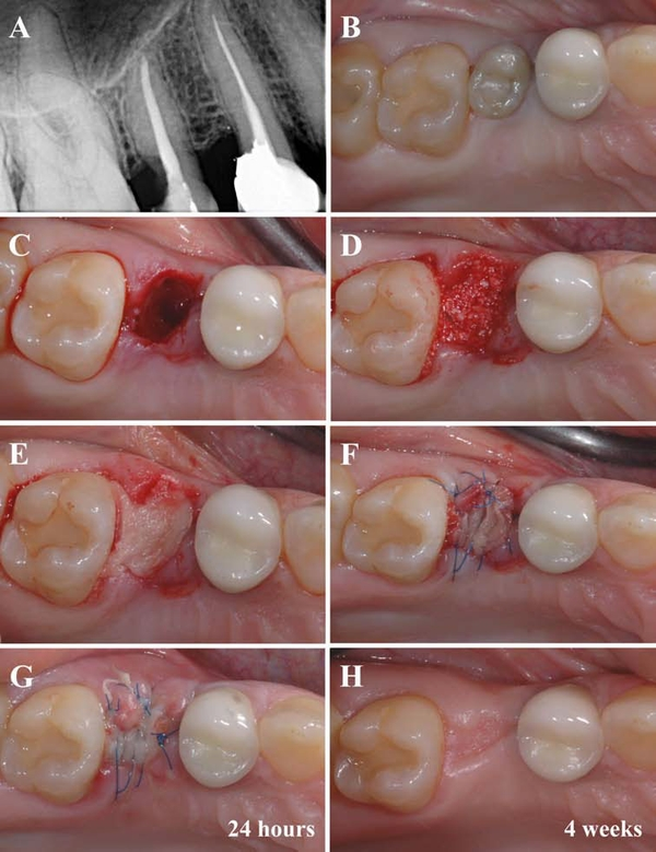 healed tooth extraction picture tooth extraction healing stages - Acur.lunamedia.co